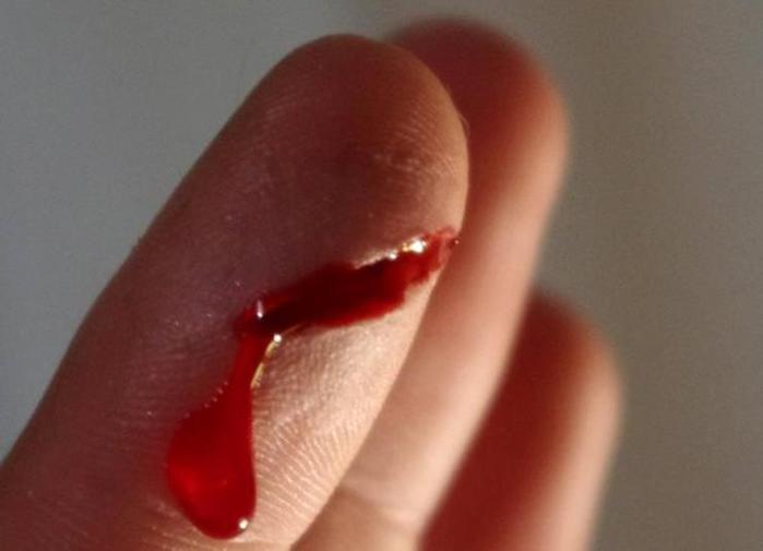 Почему порез бумагой вызывает сильную боль